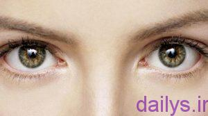 5ae168195b7b9 dalilparidanpelk cheshmchist irnab ir دلیل پریدن پلک چشم چیست؟