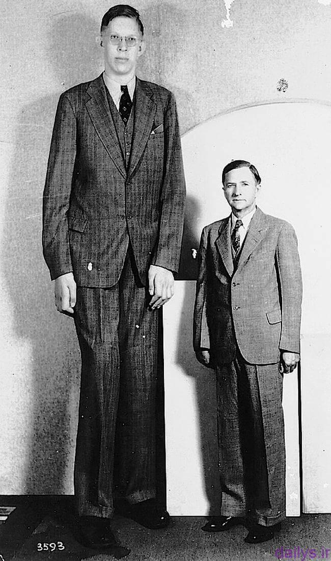 bimari gigantism irnab ir بیماری ژیگانتیسم (Gigantism) یا غول آسایی چیست؟