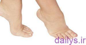 elalvarampa vadarmanan irnab ir علل ورم پا و درمان آن
