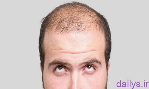 rizesh moo bad az kasht moo irnab ir ریزش مو بعد از کاشت مو